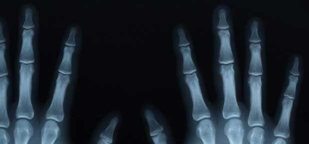 Röntgende Görüntü Nasıl Oluşur?