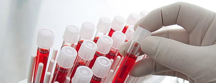 Kandan ilaç üretmek için ihale aşamasına geldik