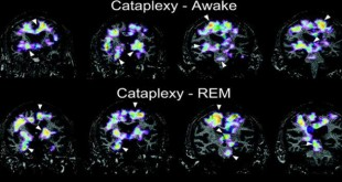 beyin fonksiyonlarini guclendiren ilac 310x165 - Beyin fonksiyonlarını güçlendiren ilaç