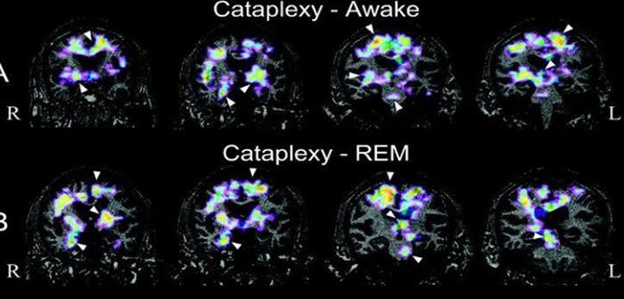 Beyin fonksiyonlarını güçlendiren ilaç