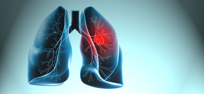 Akciğer Kanseri Tedavisinde Akıllı İlaç Dönemi