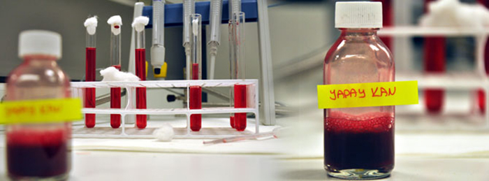 Eskişehir Osmangazi Üniversitesi'nde tamamen yerli yapay kan üretildi