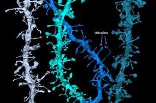 yuksek cozunurlukteki goruntulere gore uyku sirasinda beyin kendini yeniliyor 310x205 - Yüksek Çözünürlükteki Görüntülere Göre Uyku Sırasında Beyin Kendini Yeniliyor