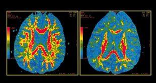 yeni alzheimer testi hastaligin ortaya cikacagi yasi tahmin edebilecek 310x165 - Yeni Alzheimer Testi, Hastalığın Ortaya Çıkacağı Yaşı Tahmin Edebilecek