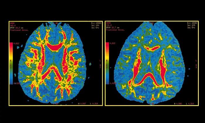 Yeni Alzheimer Testi, Hastalığın Ortaya Çıkacağı Yaşı Tahmin Edebilecek