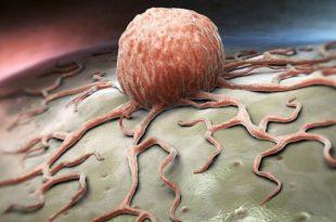 her yil kanser ilaclari icin 113 milyar dolar harcaniyor 310x205 - Her Yıl Kanser İlaçları için 113 Milyar Dolar Harcanıyor