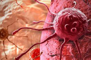 yeni kanser ilaci kemoterapi ile birlikte verildiginde daha etkilidir 310x205 - Yeni Kanser İlacı, Kemoterapi İle Birlikte Verildiğinde Daha Etkilidir!