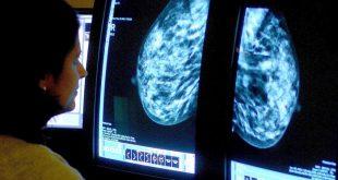 yardim kuruluslarina gore dusuk maliyetli ilaclar ingilterede meme kanseri olumlerini yuzde 10 oraninda azaltabilir 310x165 - Yardım Kuruluşlarına göre, Düşük Maliyetli İlaçlar İngiltere'de Meme Kanseri Ölümlerini Yüzde 10 Oranında Azaltabilir