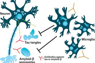 abbvie alzheimer hastaligi icin alectorun immuno noroloji tedavilerine yatirim yapiyor 310x205 - AbbVie, Alzheimer Hastalığı için Alector'un İmmüno-Nöroloji Tedavilerine Yatırım Yapıyor