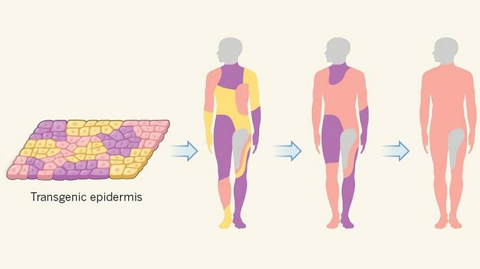 bilim insanlari tedavisi olmayan deri hastaligi icin yeni deri uretti 1 - Bilim İnsanları Tedavisi Olmayan Deri Hastalığı için Yeni Deri Üretti