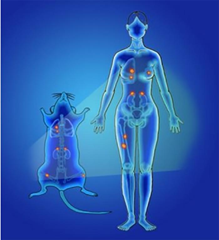nanopartikul kullanarak daha hizli daha dogru kanser tespiti - Nanopartikül Kullanarak Daha Hızlı, Daha Doğru Kanser Tespiti