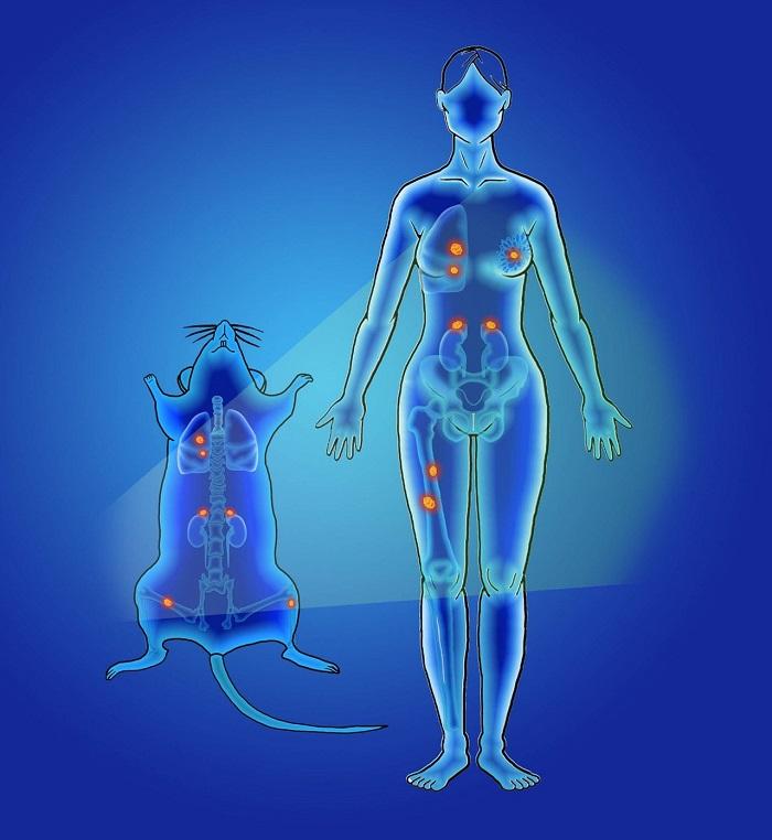 Nanopartikül Kullanarak Daha Hızlı, Daha Doğru Kanser Tespiti