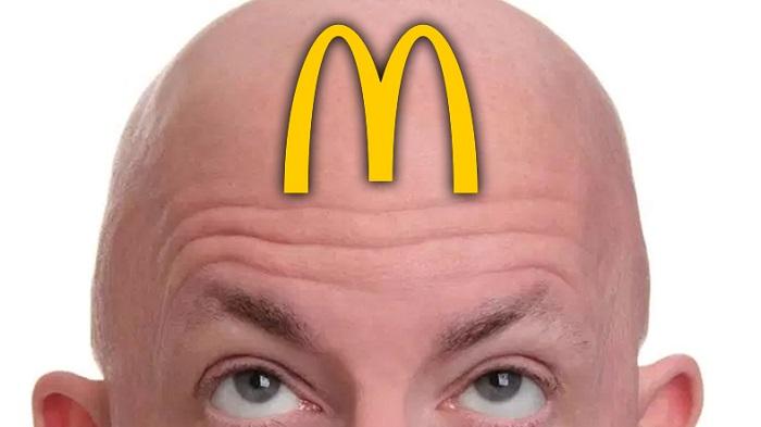 Japon Bilim İnsanları, McDonald's Patatesleriyle Kelliğe Çözüm Getirdiler!