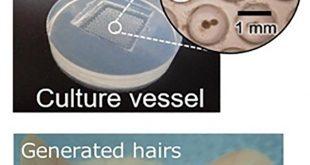 uygulanabilir sac yenileme teknolojisi 310x165 - Uygulanabilir Saç Yenileme Teknolojisi
