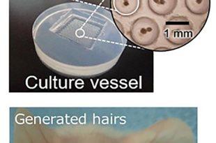 uygulanabilir sac yenileme teknolojisi 310x205 - Uygulanabilir Saç Yenileme Teknolojisi