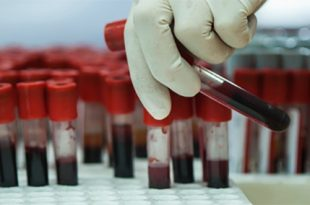 yeni noninvaziv test 8 farkli kanseri en erken donemlerinde teshis edebiliyor 310x205 - Yeni Noninvaziv Test, 8 Farklı Kanseri En Erken Dönemlerinde Teşhis Edebiliyor