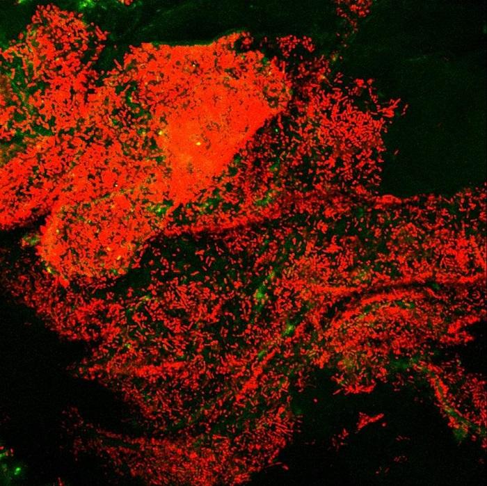 Yararlı Bağırsak Bakterileri, Konakçı Kolonizasyonunu ve Biyofilm Oluşumunu Nasıl Optimize Eder?