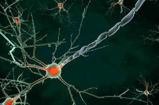 abdli bilim insanlarindan alzheimer icin buyuk bulus 310x205 - ABD'li Bilim İnsanlarından Alzheimer için Büyük Buluş