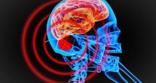 bilim insanlari kesik bastaki beyni 36 saat yasatti 310x165 - Bilim İnsanları Kesik Baştaki Beyni 36 Saat Yaşattı