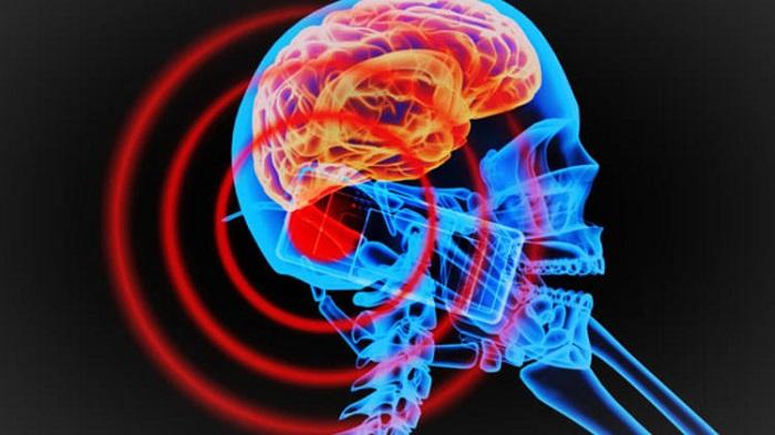 Bilim İnsanları Kesik Baştaki Beyni 36 Saat Yaşattı
