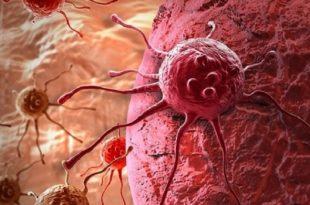 kanserde yayilmayi durduran super ilac 310x205 - Kanserde Yayılmayı Durduran Süper İlaç