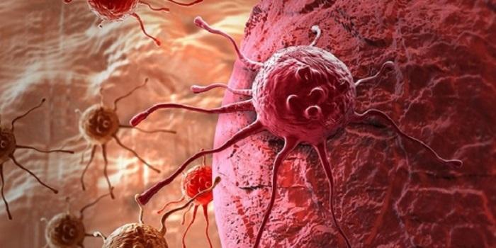 Kanserde Yayılmayı Durduran Süper İlaç