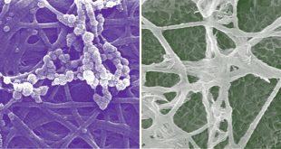 kemik gelisiminde yeni hucresel kesifler 310x165 - Kemik Gelişiminde Yeni Hücresel Keşifler