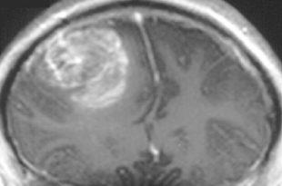 glioblastomlara karsi yeni etki maddesi 310x205 - Glioblastomlara Karşı Yeni Etki Maddesi