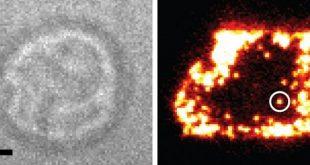 immunoloji arastirmasi t hucre antijen reseptorlerinin tek basina calistiginin gorulmesinden sonra degisime hazir 310x165 - İmmünoloji Araştırması T Hücre Antijen Reseptörlerinin Tek Başına Çalıştığının Görülmesinden Sonra Değişime Hazır