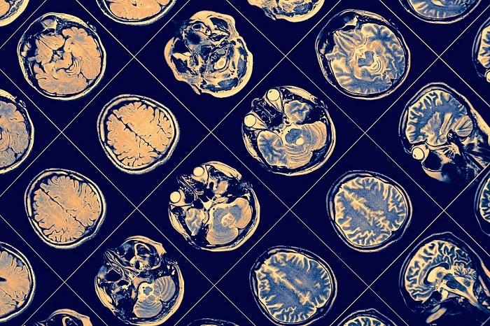 Nanoteknoloji Tıpı Nasıl Etkiler?