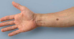sentetik kanser indikatoru erken uyari sistemi yapay ben 310x165 - Sentetik Kanser İndikatörü: Erken Uyarı Sistemi Yapay Ben
