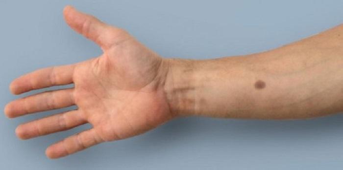 Sentetik Kanser İndikatörü: Erken Uyarı Sistemi Yapay Ben