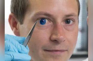 bilim insanlari dunyanin ilk 3d korneasini uretti 310x205 - Bilim İnsanları Dünyanın İlk 3D Korneasını Üretti