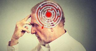 beyin egitimi uygulamasi kritik bilis iyilestirici norokimyasal duzeylerini artirabilir 310x165 - Beyin Eğitimi Uygulaması Kritik Biliş İyileştirici Nörokimyasal Düzeylerini Artırabilir