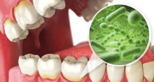 nanoteknoloji ile gida zehirlenmesi ve dis enfeksiyonlari tarih olacak 310x165 - Nanoteknoloji ile Gıda Zehirlenmesi ve Diş Enfeksiyonları Tarih Olacak!