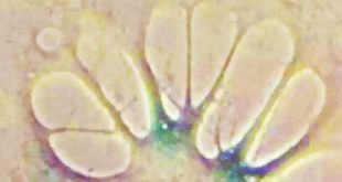 yaslanmanin etkileri geri alinabildi 310x165 - Yaşlanmanın Etkileri Geri Alınabildi