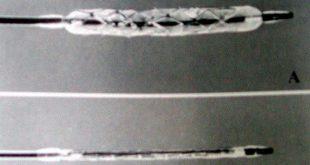 koroner kalp hastaligina mikro stent gelistirildi 310x165 - Koroner Kalp Hastalığına Mikro Stent Geliştirildi