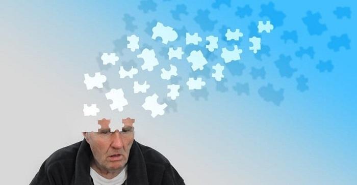 İTÜ'den Alzheimer Parkinson ve Huntington Tedavisi Araştırması