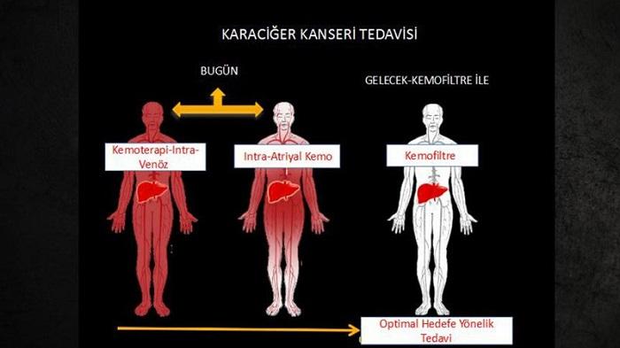Kemoterapinin Yan Etkileri İlaç Süngeriyle Engellenebilir