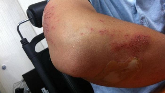 Yaraları Çabuk İyileştiren Bandaj Geliştirildi