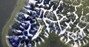 bocekler antibiyotik direncine karsi verilen savasta bize yardimci olabilir 310x165 - Böcekler, Antibiyotik Direncine Karşı Verilen Savaşta Bize Yardımcı Olabilir