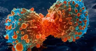 kanser immunoterapisinde daha fazla secenegin ortaya cikarilmasi 310x165 - Kanser İmmünoterapisinde Daha Fazla Seçeneğin Ortaya Çıkarılması