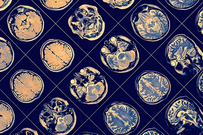 Nanoteknoloji Tıbbı Nasıl Etkiliyor?