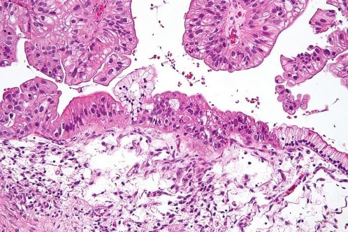 Kök Hücre Benzeri Hücreleri Hedeflemek Over Kanserinin Nüksetmesini Önleyebilir