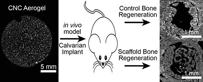 Bitki Selülozundan Kemik İmplant Malzemesi Geliştirildi
