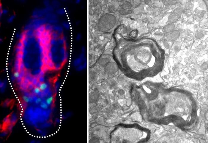 Kıl Köklerindeki Kök Hücreler Farelerde Hasarlı Nöronları Tedavi Edebiliyor