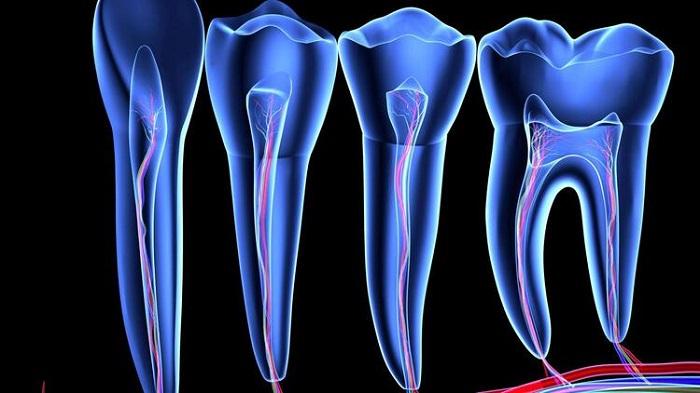 Çinli Bilim İnsanları Diş Çürümesini Ortadan Kaldırmayı Başaran Bir Çözelti Geliştirdi