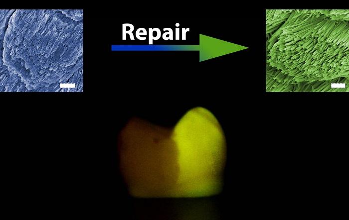 Diş Minesi Onarımında Geliştirilen Yeni Yöntem