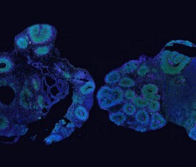 Organoidler; İnsanlarda ve Şempanzelerde Beynin Nasıl Yapıldığına Dair İpucu Verir