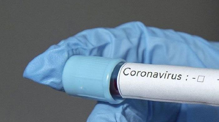 Dev Şirket Açıkladı! İşte Korona Virüsüne Umut Olacak İlaç